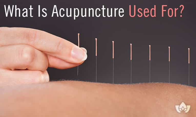 What Is Acupuncture Used For? | Mindful Healing | Mississauga Naturopathic Doctor