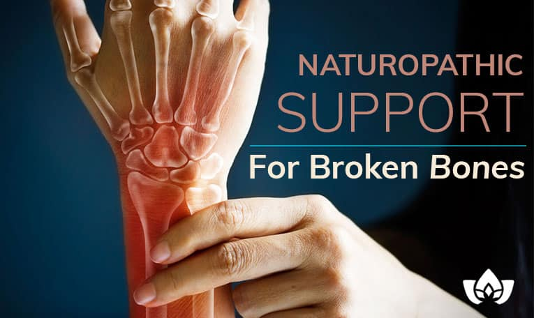 Naturopathic Support For Broken Bones | Mindful Healing | Mississauge Naturopathic Doctor