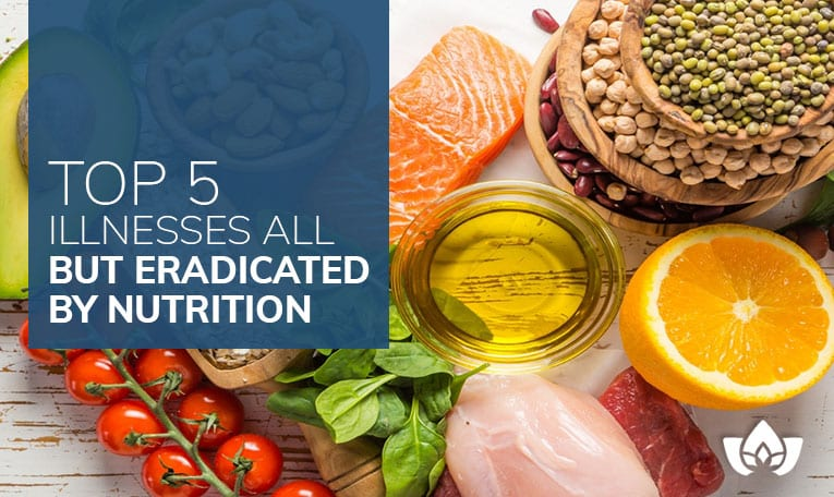 Top 5 Illnesses All But Eradicated By Nutrition | Mindful Healing | Mississauga Naturopathic Doctor