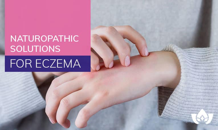 Naturopathic Solutions for Eczema | Mindful Healing | Naturopathic Doctor Mississauga